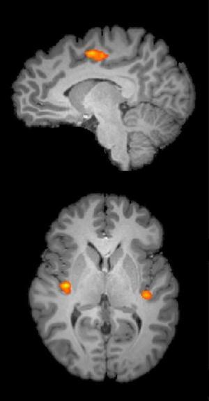 Food That Boost Brain Power